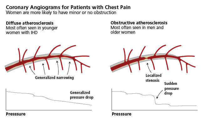 coronary Angiograms for pts with chest pain